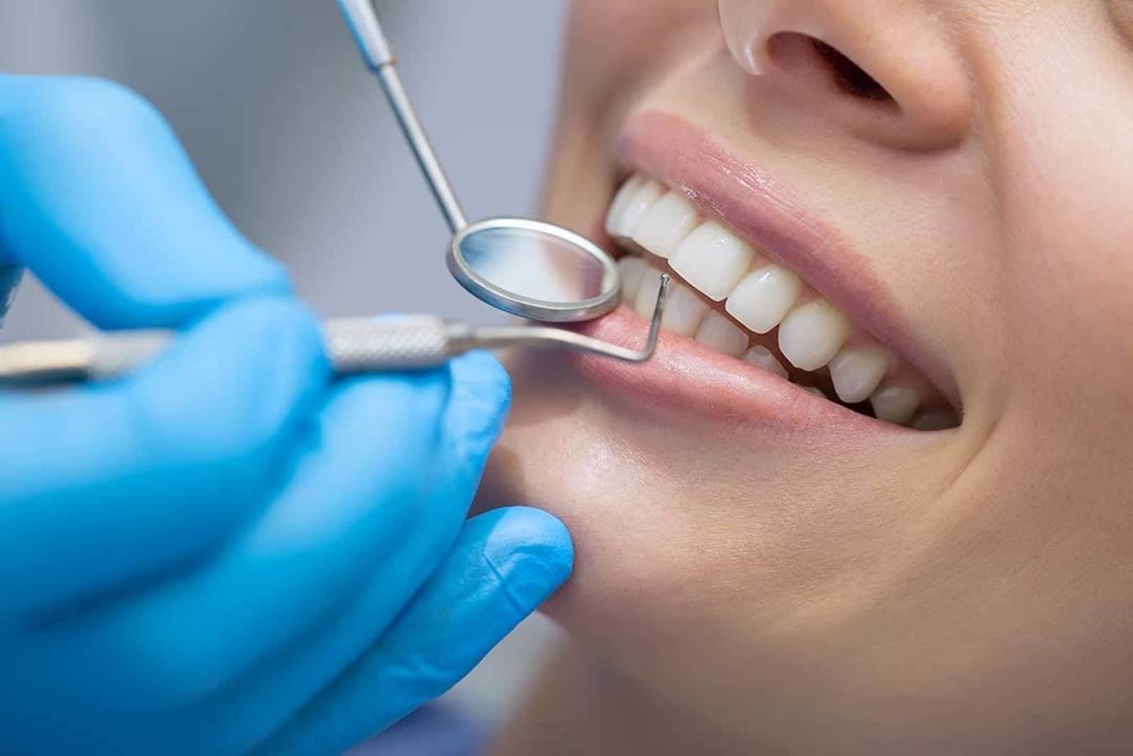 Soins des dents